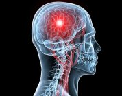 Different strokes? Varying stroke outcomes for men and women point elsewhere